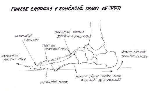 58cc29db3 Biomechanická obuv je řešením mnohých zdravotních problémů