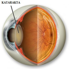 cataract_eye