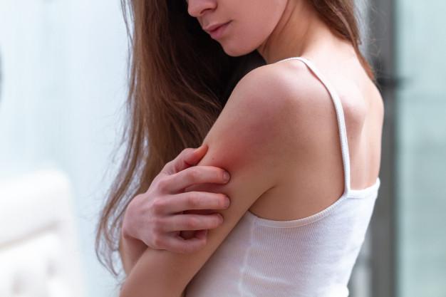 Svědění kůže se může vyskytnout i v souvislosti se zvýšeným stresem.